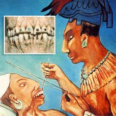 Mayan dental history with dental inlays of semi precious stones over a thousand years ago.