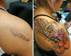 Tattoo Around Scar Woman S Keloid Is Integrated Into A Tattoo