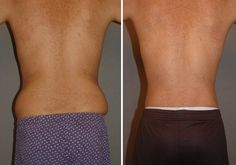 Not loving the #LoveHandles? #Liposuction of the abdomen and flanks solves what crunches cannot.