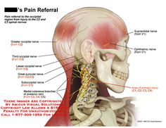 Pain referral to occipital region from C2 and C3 spinal nerves.
