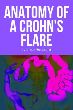 Once you've been diagnosed with Crohn's disease, no matter where you are — at the grocery store, at work, or in an airplane — the thought of a Crohn's flare may creep to the top of your mind. Crohn's flares can be painful and debilitating, but the better you're mentally and physically prepared for an attack, the better you can get through it. Start by understanding the anatomy of a Crohn's flare.