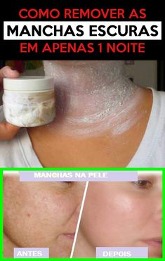 Beauty Skin, Hair Beauty, How To Remove, How To Make, Beauty Women, Personal Care, Health, Dark Spots, Beauty Secrets