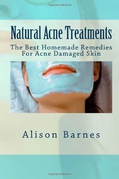 Natural Acne Treatments: The Best Homemade Remedies For Acne Damaged Skin by Alison Barnes, http://www.amazon.com/dp/147522222X/ref=cm_sw_r_pi_dp_KNZusb15ZFT7Y1K9