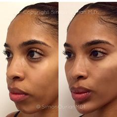"""""""Nonsurgical cheek & chin Augmentation.  Before (left) and After (right) of Nonsurgical cheek lift and augmentation plus chin augmentation. Watch the previous slide for the demo video.  Treatment: Non-Surgical Cheek and chin Augmentation  Purpose: Augment and lift the cheeks and chin  How it works: Using Voluma injections ( or other filers)  Results: Immediate to 2 weeks ✏ Note: Individual results may vary  Phone:310-746-5233  Email:info@epione.com  Website:www.epionebh.co"""