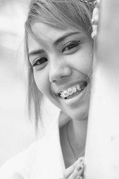 smile I've got braces
