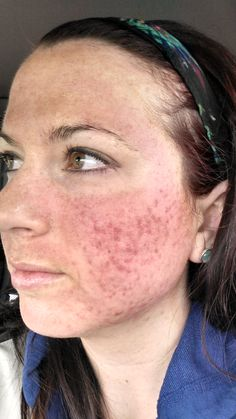 Immediately after Dermapen and Vi peel. Discomfort, no pain. Felt like a tattoo needle gun scratching at my skin. Natural Beauty Tips, Natural Skin Care, Dermapen Microneedling, Skin Needling, Facial Scars, Facial Therapy, Derma Roller, Glowing Skin, Skin Care Tips