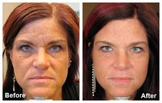 Botox - Before and After Mequon, WI