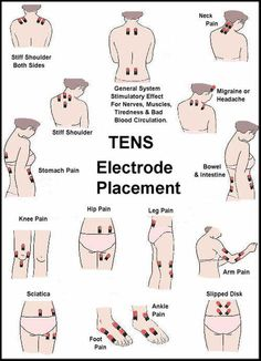 Effectively use TENS unit for relieving muscle pain involves understanding where to place the electrodes.  Generally speaking, TENS electrodes should be placed around the perimeter of the area to be treated in order to be effective.  This allows the current to travel through the nerve fibers within the affected muscles.The following illustrations are provided by Current Solutions.  They show recommended electrode placement for the common areas of the body where pain is treated with TENS ...