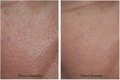 In today's article, find out how to reduce the appearance of enlarged pores with these masks.