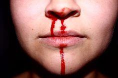 AU! Werken bij de provincie Utrecht is tegenwoordig niet zonder gevaren. In het gloednieuwe provinciehuis met zijn 'open uitstraling' zijn de glazen deuren en wanden zo kraakhelder dat ambtenaren er massaal tegenaan botsen, meldt De Telegraaf. Sinds de opening op 20 juni hebben bedrijfshulpverleners al elf mensen behandeld na een pijnlijke botsing. Ze liepen verwondingen op als snijwonden aan het voorhoofd en bloedneuzen. (vgl eindnoot 3)