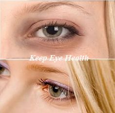 Dark Eye Circles Glow Ideas