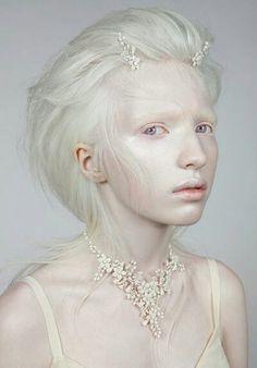 Albinos Babes 85