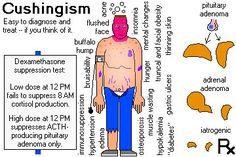Hyperfunction of the Adrenals ~ (Cushing's Disease/ Hypercortisolism/ Conn's Disease/ Hyperaldosteronism) ~ causes OBESITY! ~ cushingism.jpg
