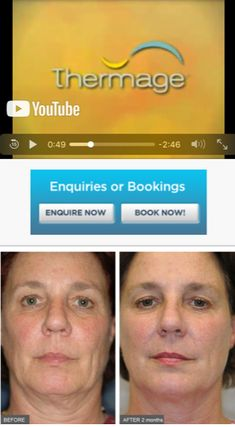 16 Best Thermage CPT images in 2019 | Skin Tightening, Perth, Sydney
