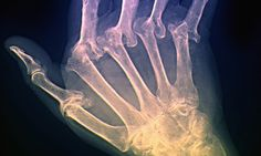 Drug could treat arthritis by stopping immune system from attacking joints