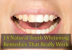 14 Natural Teeth Whitening Remedies That Really Work