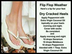 Foot moisturizer