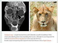 Leontiasis ossea (aka Lion face) is most commonly caused by what underlying pathology?