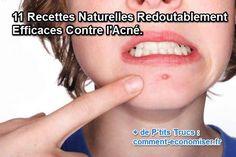 11 recettes naturelles contre l'acné