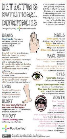 fd14ac2268b6246ccf5df1ce9c032fb5 | Detecting Deficiencies | skin nutrition skin conditions