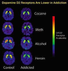 Dopamine Receptors in Addiction - repeated drug use reduces dopamine receptors in the brain. Dopamine receptors are integral to our pleasure and reward experience Drug Addiction Recovery, Nicotine Addiction, Addiction Help, People With Schizophrenia, Dopamine Receptor, Brain Diseases, Brain Lesions, Psychiatry, Fibromyalgia
