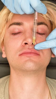 Cheek Fillers, Facial Fillers, Botox Fillers, Dermal Fillers, Dental Aesthetics, Facial Aesthetics, Botox Cosmetic, Cosmetic Clinic, Hyaluronic Acid Lips