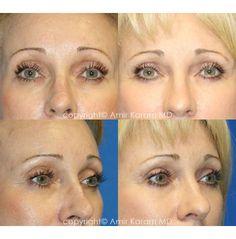 Eye Rejuvenation