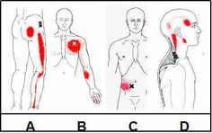 myofascial trigger points | The Great Imposters Or Muscles That Mimic