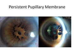 Name: Vonda Cross, COMT, CRA Description: #Ophthalmology #OphthalmicPhotography #Slitlamp photo, Persistent Pupillary Membrane