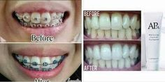 🐾How to achieve best result when using whitening toothpaste? Whitening, Teeth, How To Remove, Stains, Products, Tooth, Dark Spots, Gadget