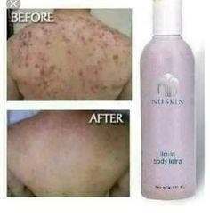 - Care - Skin care , beauty ideas and skin care tips Nu Skin, Galvanic Spa, Lighten Skin, Smooth Skin, Nice Body, Body Wash, Skin Care Tips, Beauty Hacks, About Me Blog