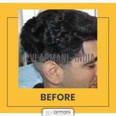 Hair Transplant In India, Hair Restoration, Phobias, Touch, Natural, Free, Nature, Au Natural