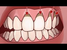 Your mouth is your lifeline. Good oral hygiene is important, and for some people, even brushing and flossing twice daily is not enough to stave off gum disease. Gum Health, Health Tips, Health And Wellness, Health And Beauty, Oral Health, Herbal Remedies, Health Remedies, Home Remedies, Natural Remedies