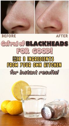 Get rid of Blackheads! Mix 3 ingredients from your own kitchen for immediate results!