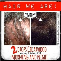 Cedarwood for hair growth!   Www.youngliving.com - member sign up -  Sponsor # 1492370