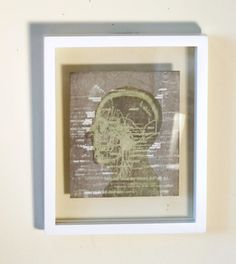 Scalp anatomy medical art lithograph and relief by ANKarabin, $125.00