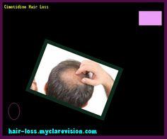 Cimetidine Hair Loss 141517 - Hair Loss Cure!