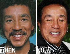Smokey Robinson plastic surgery before after.....