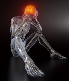 Exercise Induced Headaches & Hemiplegic Migraines- Causes & Observations http://MigraEase.com #migraine #headache #natural