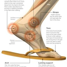 Take a look at some of the latest research findings on what flip flops can do to your feet, and the ripple effects it can have on the rest of your body. Achy Legs, Heel Pain, Calf Muscles, Charts And Graphs, Medical Information, Physical Therapy, Pediatrics, Getting Old, Partner