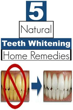 Natural Skin Healing: 5 Natural Teeth Whitening Home Remedies