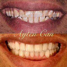Full estetik porselenlerle daha güzel bir gülüşe sahip olabilirsiniz. #dental #implant #treatment #aesthetic #beauty #smiledesign #beforeafter #dentist #doctor #dentistry #cosmeticdentistry #natural #aesthetic by dtaytencan Our Cosmetic Dentistry Page: http://www.lagunavistadental.com/services/cosmetic-dentistry/ Google My Business: https://plus.google.com/LagunaVistaDentalElkGrove/about Our Yelp Page: http://www.yelp.com/biz/fenton-krystle-dds-laguna-vista-dental-elk-grove-3 Our Facebook…