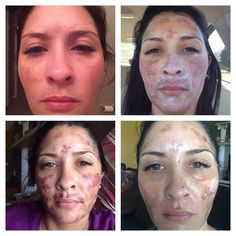 Message me to learn her story! #Transformation  #RodanandFields #PrescriptionBased #ProactivDoctors #BeforeandAfter  sarahkwheeler.myrandf.com
