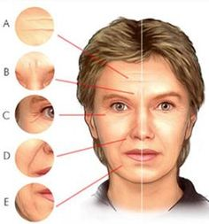 Three Super-Stimulating Facial Aerobics Tricks To Inhibit, And Melt Away Skin Creases Facial Yoga, Facial Massage, Face Lift Exercises, Toning Exercises, Toning Workouts, Facelift Without Surgery, Reduce Face Fat, Face Tone, Natural Face Lift
