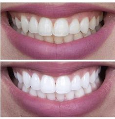 How to get rid of tooth decay and cavities naturally with home made teeth whitener You need not to worry more because you can get rid of tooth decay and cavities naturally. You need coconut oil,clove oil, tumeric tooth mask and other ingredien Beauty Tips For Skin, Beauty Makeup Tips, Best Beauty Tips, Beauty Hacks, Diy Beauty, Whitening Skin Care, Teeth Whitening Diy, Skin Care Regimen, Skin Care Tips
