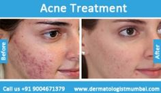 For the #Acne #Treatment contact Dr. Rinky Kapoor  http://dermatologistmumbai.com/skin/acne-pimple-treatment.html