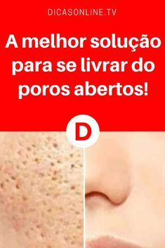 Poros abertos no rosto | A melhor solução para se livrar do poros abertos! | A melhor solução caseira para se livrar do poros abertos e cravos! Veja como