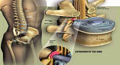 Liječenje diskurs hernije: Umjesto operacije pokušajte s prirodnim rješenjem ... | Prirodom do zdravlja