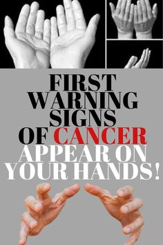 Warning signs that cancer is growing in your body! Healthy Diet Tips, Daily Health Tips, Healthy Living Tips, Healthy Herbs, Health Site, News Health, Health Fitness, Wellness Tips, Shopping