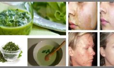 Makeup & Skin Care: Homemade creams to remove face stains Brown Spots, Dark Spots, Remover Manchas, Cosmetic Treatments, Les Rides, Sagging Skin, How To Treat Acne, Tips Belleza, Flawless Skin